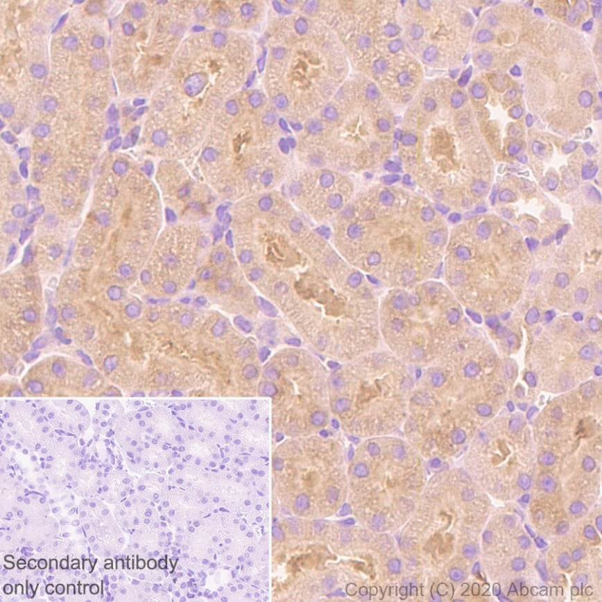 Immunohistochemistry (Formalin/PFA-fixed paraffin-embedded sections) - Anti-DIAPH1 antibody [EPR7948] (ab129167)