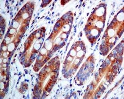 Immunohistochemistry (Formalin/PFA-fixed paraffin-embedded sections) - Anti-DIAPH1 antibody [EPR7948] (ab129167)