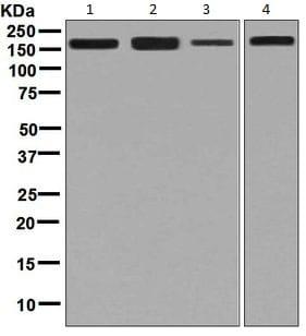 Western blot - Anti-DIAPH1 antibody [EPR7948] (ab129167)