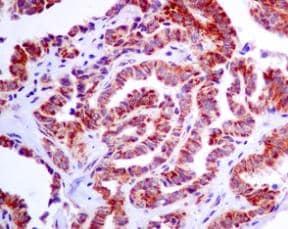 Immunohistochemistry (Formalin/PFA-fixed paraffin-embedded sections) - Anti-IDH2 antibody [EPR7576] (ab129180)