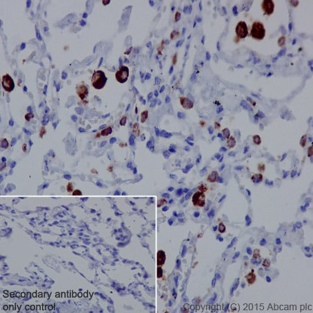Immunohistochemistry (Formalin/PFA-fixed paraffin-embedded sections) - Anti-NAPSIN A antibody [EPR6257] (ab129189)