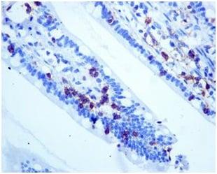 Immunohistochemistry (Formalin/PFA-fixed paraffin-embedded sections) - Anti-CD103 antibody [EPR4166(2)] (ab129202)