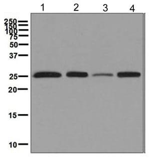 Western blot - Anti-Peroxiredoxin 3/PRDX3 antibody [EPR8114] (ab129206)
