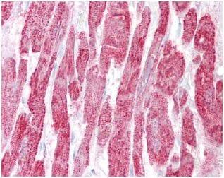 Immunohistochemistry (Formalin/PFA-fixed paraffin-embedded sections) - Anti-EPM2A/Laforin antibody (ab129321)
