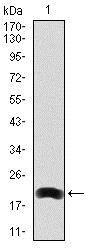 Western blot - Anti-LRP5 antibody [2B11] (ab129357)