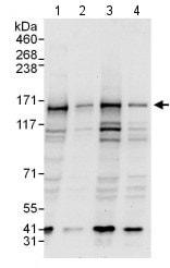 Western blot - Anti-P Glycoprotein antibody (ab129450)