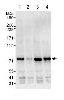 Western blot - Anti-Metnase antibody (ab129455)
