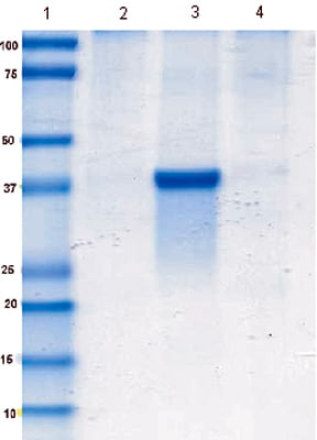 Immunoprecipitation - Anti-Aldolase B antibody [5E2AD2] (ab129728)