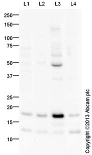 Western blot - Anti-SDHC antibody (ab129736)