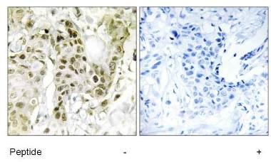 Immunohistochemistry (Formalin/PFA-fixed paraffin-embedded sections) - Anti-BCOR antibody (ab129777)