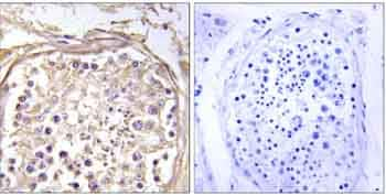 Immunohistochemistry (Formalin/PFA-fixed paraffin-embedded sections) - Anti-CHST9 antibody (ab129779)
