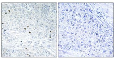Immunohistochemistry (Formalin/PFA-fixed paraffin-embedded sections) - Anti-TP53INP2 antibody (ab129784)