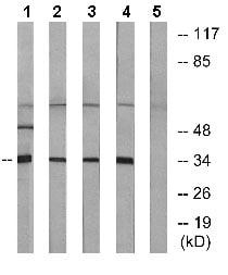 Western blot - Anti-OR8D1 antibody (ab129890)