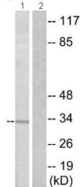 Western blot - Anti-OR51B5 antibody (ab129965)