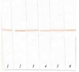 Western blot - Anti-proBNP antibody [15F11] (ab13115)