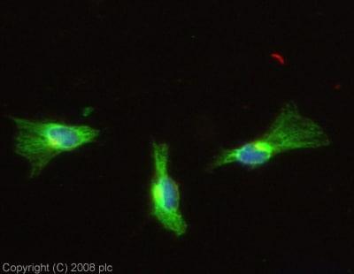 Immunocytochemistry/ Immunofluorescence - Anti-PTP lambda/FMI antibody (ab13223)
