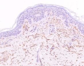 Immunohistochemistry (Formalin/PFA-fixed paraffin-embedded sections) - Anti-Vitronectin/S-Protein antibody [VN58-1] (ab13413)