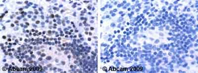 Immunohistochemistry (Formalin/PFA-fixed paraffin-embedded sections) - Anti-Superoxide Dismutase 1 antibody (ab13499)