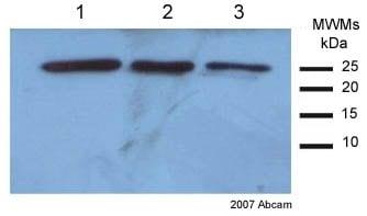 Western blot - Anti-SOD2/MnSOD antibody (ab13533)