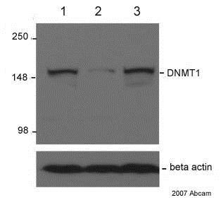 Western blot - Anti-Dnmt1 antibody [60B1220.1] - ChIP Grade (ab13537)