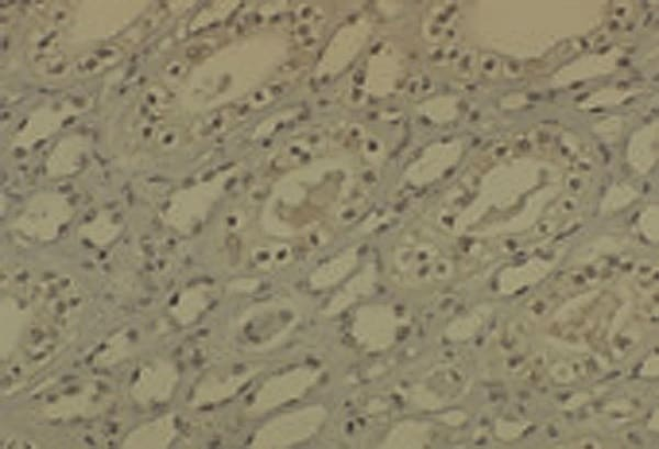 Immunohistochemistry (Formalin/PFA-fixed paraffin-embedded sections) - Anti-Dnmt1 antibody [60B1220.1] - ChIP Grade (ab13537)