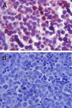免疫组织化学(福尔马林/PFA固定石蜡切片)-抗TLR4抗体(ab13556)