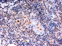 Immunohistochemistry (Formalin/PFA-fixed paraffin-embedded sections) - Anti-AIRE antibody - ChIP Grade (ab13573)