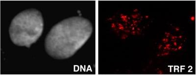 Immunocytochemistry/ Immunofluorescence - Anti-TRF2 antibody [4A794] - ChIP Grade (ab13579)