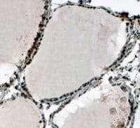 Immunohistochemistry (Formalin/PFA-fixed paraffin-embedded sections) - Anti-ELF5 antibody (ab13581)