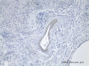 Immunohistochemistry (Formalin/PFA-fixed paraffin-embedded sections) - Anti-TEM7 antibody [197C193] (ab13667)