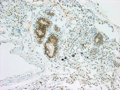 Immunohistochemistry (Formalin/PFA-fixed paraffin-embedded sections) - Anti-c-Jun (phospho T91 + T93) antibody [C-J 4C4] (ab13671)