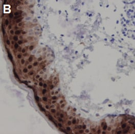 Immunohistochemistry (Formalin/PFA-fixed paraffin-embedded sections) - Anti-Psoriasin antibody [47C1068] (ab13680)