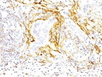 Immunohistochemistry (Formalin/PFA-fixed paraffin-embedded sections) - Anti-TEM8/ATR antibody [200C1339] (ab13798)