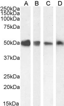 Western blot - Anti-TXNDC5 antibody (ab13820)