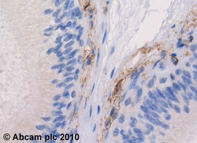 Immunohistochemistry (Formalin/PFA-fixed paraffin-embedded sections) - Anti-5HT1B Receptor antibody (ab13896)