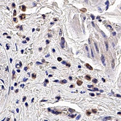 Immunohistochemistry (Formalin/PFA-fixed paraffin-embedded sections) - Anti-PGRPS antibody [188C424] (ab13903)