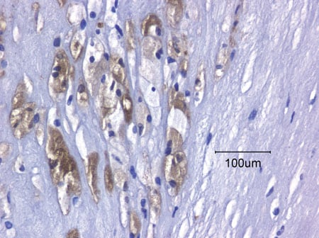 Immunohistochemistry (Formalin/PFA-fixed paraffin-embedded sections) - Anti-FABP4 antibody (ab13979)