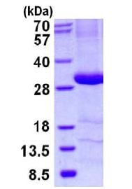 SDS-PAGE - Recombinant Human C4 binding protein/C4BPB (ab130028)