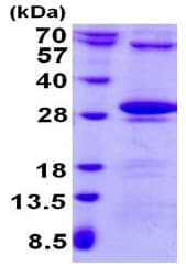 SDS-PAGE - Recombinant Human Thymidine Kinase 2 protein (ab130043)