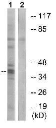 Western blot - Anti-TMEM185A antibody (ab130101)