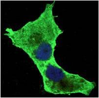 Immunocytochemistry/ Immunofluorescence - Anti-Daxx antibody [7A11] (ab130198)