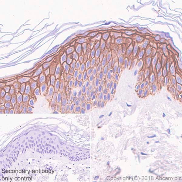 Immunohistochemistry (Formalin/PFA-fixed paraffin-embedded sections) - Anti-Syndecan-1 antibody [SP152] (ab130405)