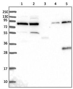 Western blot - Anti-GPATCH1 antibody (ab130413)