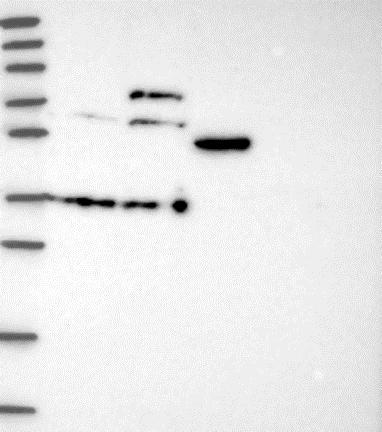 Western blot - Anti-WDR21A antibody (ab130417)