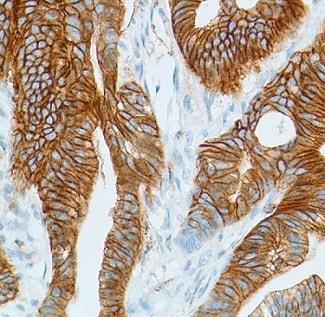 Immunohistochemistry (Formalin/PFA-fixed paraffin-embedded sections) - Anti-Girdin (phospho Y1765) antibody [SP158] (ab130424)