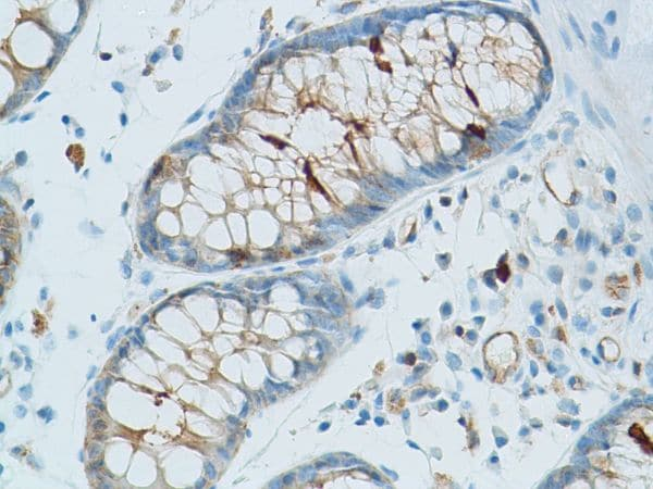 Immunohistochemistry (Formalin/PFA-fixed paraffin-embedded sections) - Anti-GIV (phospho Y1765) antibody [SP158] (ab130424)