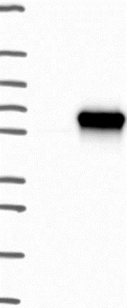 Western blot - Anti-CCDC97 antibody (ab130452)