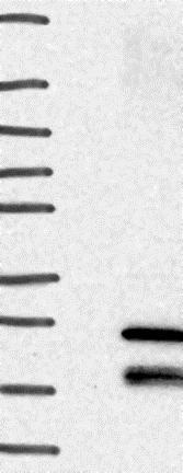 Western blot - Anti-TMEM208 antibody (ab130459)