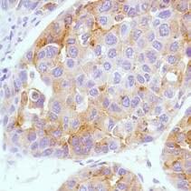 Immunohistochemistry (Formalin/PFA-fixed paraffin-embedded sections) - Anti-alpha 1 Fetoprotein antibody [SP154] (ab130748)