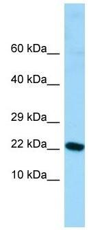 Western blot - Anti-ALG13 antibody (ab130829)